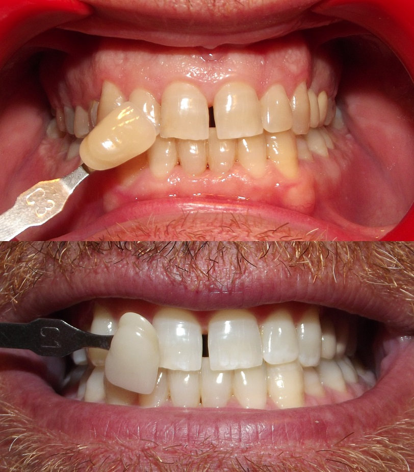 Image showing before and after images of bleaching. The teeth before are yellow and after bleaching they are white.